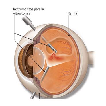 cirugía -vitrectomía
