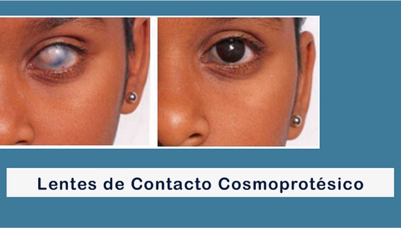 Clinica Optica Chitre Lente cosmoprotesico